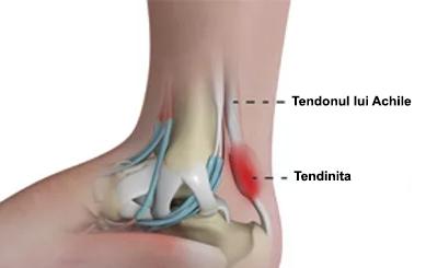 artroza de tratament comun de gradul I tratamentul medical al bursitei genunchiului